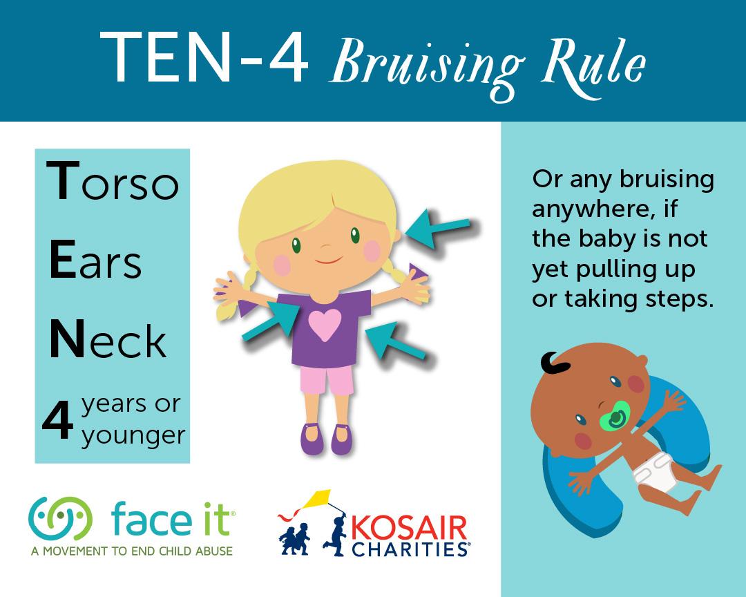 TEN-4 Bruising Rule